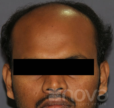 Hair Transplantation, Before Treatment Photo