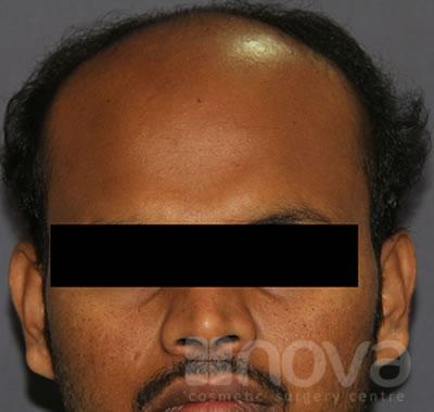 Hair Transplantation, Before Treatment Photo