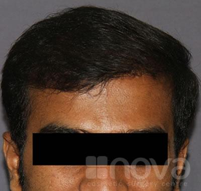 Hair Transplantation Photos | Hair Fixing in Coimbatore | Nova Cosmetic Surgery Centre