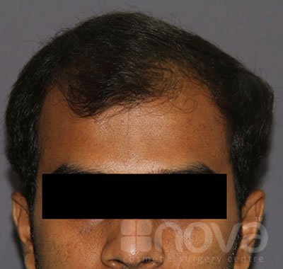 Before Hair Transplantation Photos | Non Surgical Method