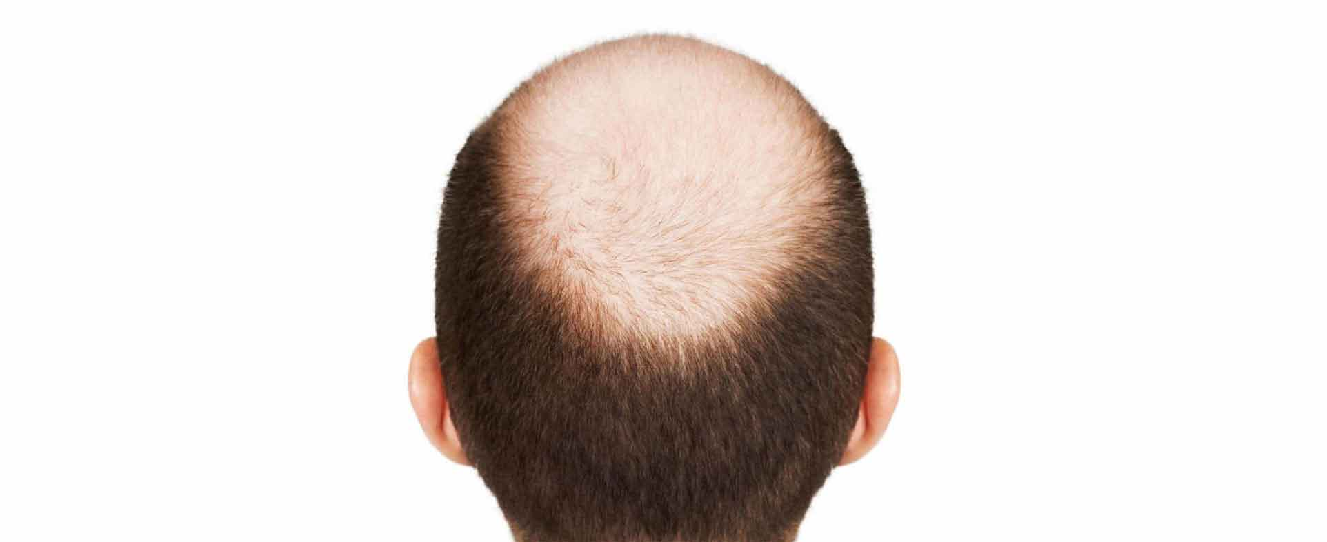 Hair Restoration | Hair Transplantation and Fixing | Non-surgical Treatment Centre