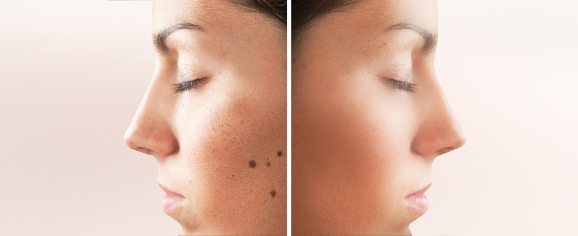Permanent Tattoo and Mole Removal Treatment Clinic
